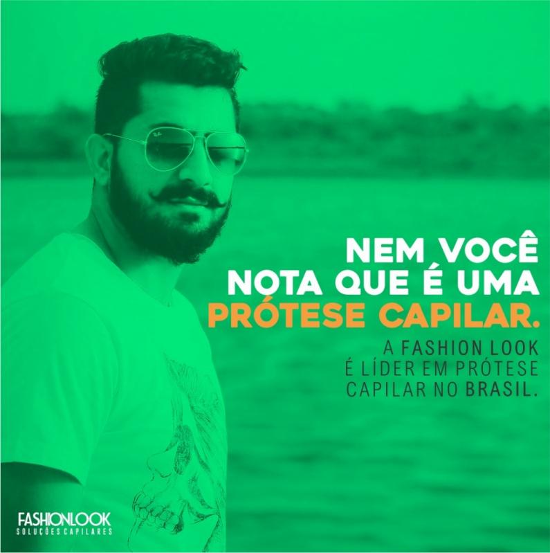 Comprar Prótese Capilar Masculina Lace São José do Vale do Rio Preto - Prótese Capilar Masculina Grisalha