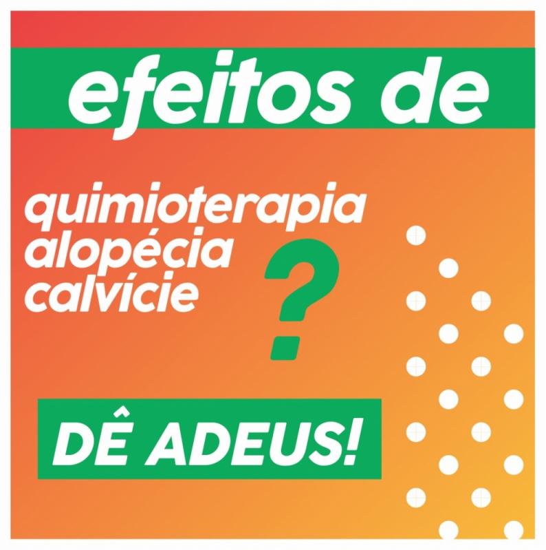 Comprar Prótese Capilar Masculina Micropele Brasilândia - Prótese Capilar Micropele Masculina