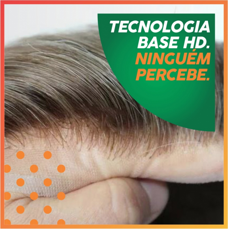 Onde Tem Implante de Cabelo Natural Paraíba do Sul - Implante Cabelo Liso