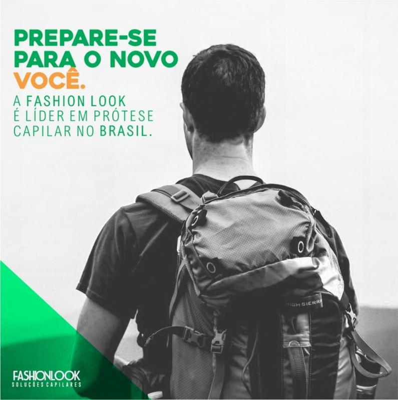 Prótese Capilar Masculina Cacheada para Comprar São João de Meriti - Prótese Capilar Micropele Masculina