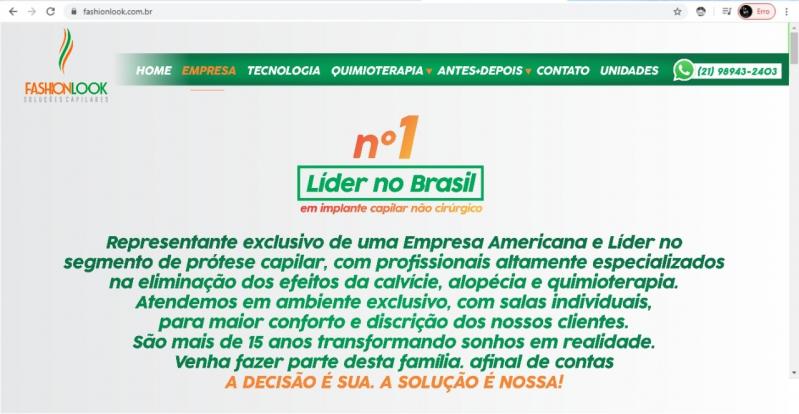Prótese Capilar Masculina Tela São Pedro da Aldeia - Prótese Capilar Masculina Cabelo Humano