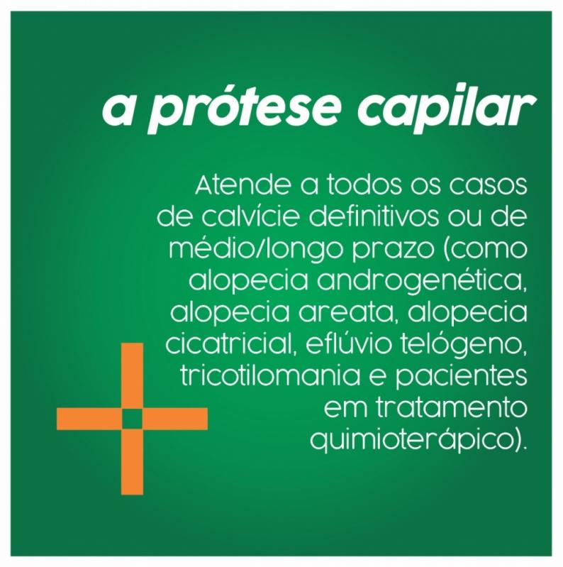 Prótese Capilar Masculina Itaguaí - Prótese Capilar Masculina Cabelo Humano
