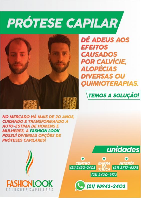 Prótese Masculina Capilar São José do Vale do Rio Preto - Prótese Capilar Masculina