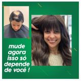 implante cabelo feminino Brasilândia