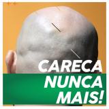 implante capilar queimaduras Paraíba do Sul