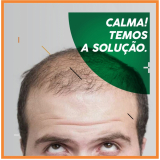 implante de cabelo feminino Porto Real
