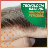 onde colocar prótese capilar micropele feminina Miguel Pereira