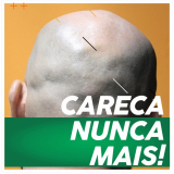 onde comprar prótese capilar masculina cabelo humano Conceição de Macabu