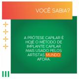 onde comprar prótese capilar masculina lace São José de Ubá