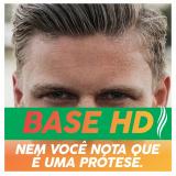prótese capilar masculina tela para comprar Rio Bonito