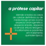 prótese capilar masculina Duque de Caxias