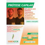 prótese masculina capilar Itaguaí